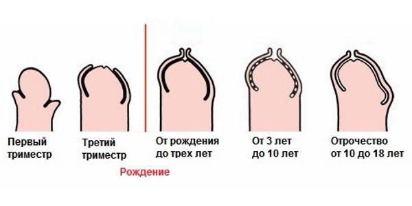 Развитие полового члена