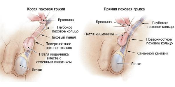Болит правое яичко: разновидности болей и причины их возникновения
