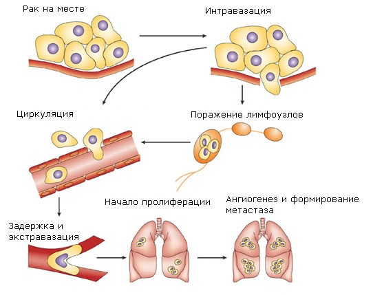 Метастазирование рака