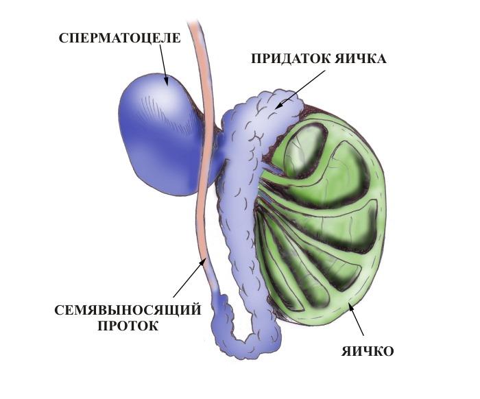 Семенной канатик симптомы и лечение воспаления фуникулита и кисты