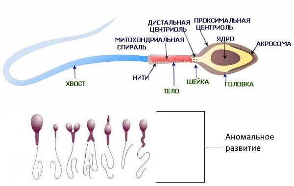 Сравнение сперматозоидов при тератозооспермии