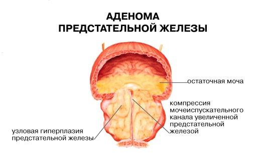 Узловая аденома простаты