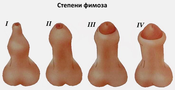 Головка пениса при эрекции не открывается
