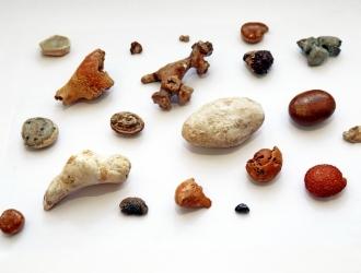 Причины образования камней в простате