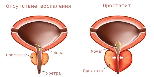 спермаплант при простатите