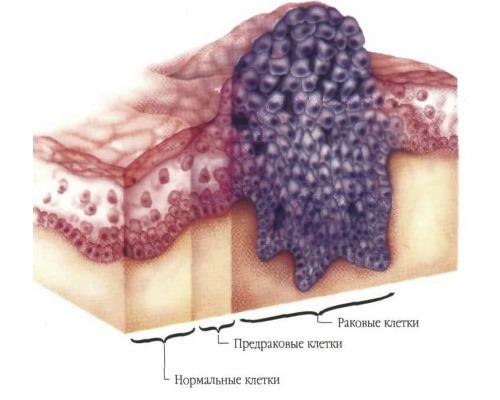 Рак полового члена