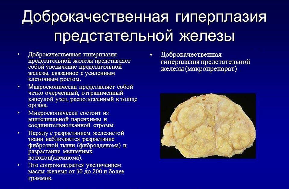 Современные способы лечения простатита препарат Финастерид Лечение аденомы финастеридом