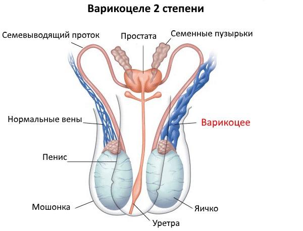 Симптомы варикоцеле 2 степени