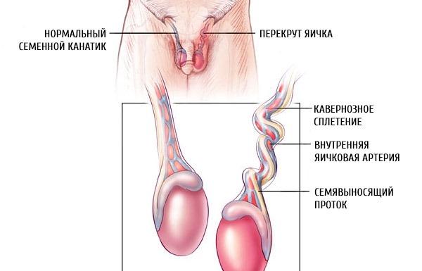 Факторы риска перекрута яичка