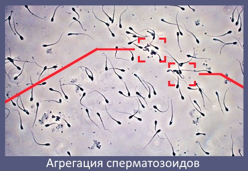 Выживают ли сперматозоиды в водопроводной воде Читаю
