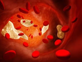 Импотенцию может спровоцировать плохое кровообращение
