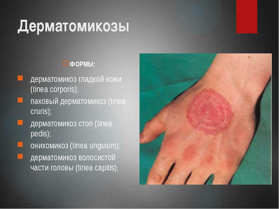 Формы дерматомикозов