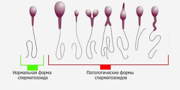 Какое количество спермы нормальное закладки
