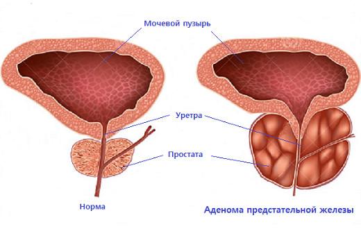 Как выглядит гиперплазия простаты