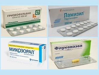 Если причиной являются грибковые заболевания, то назначаются противогрибковые препараты