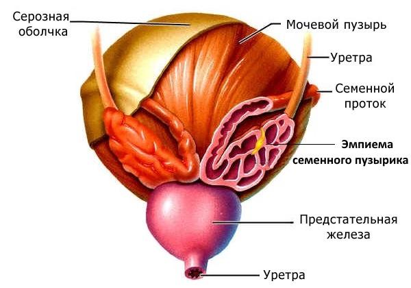 Отчего возникают заболевания предстательной железы причины симптомы и лечение