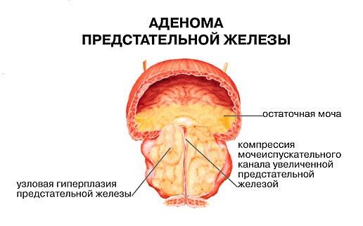 кора осины применение для лечения простатита