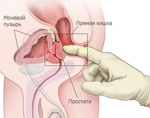 Диагностика простатита с помощью пальпации простаты