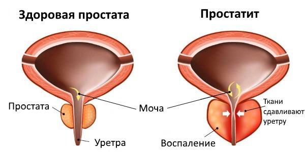 Клиническая картина простатита