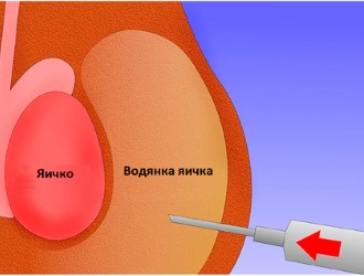Последствия операции при гидроцеле