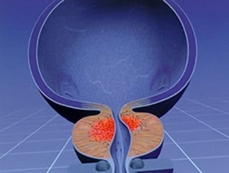 Железистая гиперплазия простаты