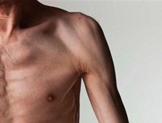 При гипогонадизме проявляется мышечная слабость