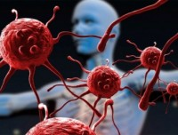 Древнейшая операция может предупредить СПИД