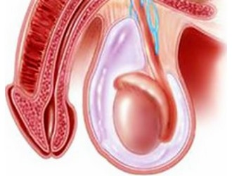 Лечение гидроцеле без операции